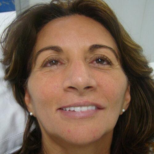 <p></noscript>Às vezes, nossa clínica recebe casos complexos como este de recuperação de todos os dentes.<br /> Em nove horas de cirurgia, o Dr. Contatore e sua equipe removeram todos os dentes da paciente, colocaram os implantes e fixaram uma prótese temporária.</p> <p>O implante com carga imediata é uma técnica de implantes dentários com tempo reduzido para a colocação da prótese. Dependo do quadro apresentado pelo paciente, é possível voltar a falar, mastigar e sorrir com naturalidade no mesmo dia.</p> <p>Neste caso, foi feito o enxerto celular, que vai acelerar o processo de recuperação óssea. Partículas bioativas agirão sobre as células como fatores de crescimento, acelerando a osseointegração.</p> <p>Antes de realizar cirurgias para implante como esta, o implantodontista faz uma avaliação inicial. Com base em exames clínicos e radiografias, ele avalia se você tem qualidade óssea para receber o implante.</p> <p>O resultado é sempre o sorriso de volta, a mastigação normal e a autoestima recuperada.</p>