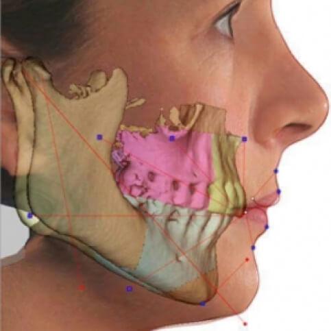 O que é Perda Óssea Dentária