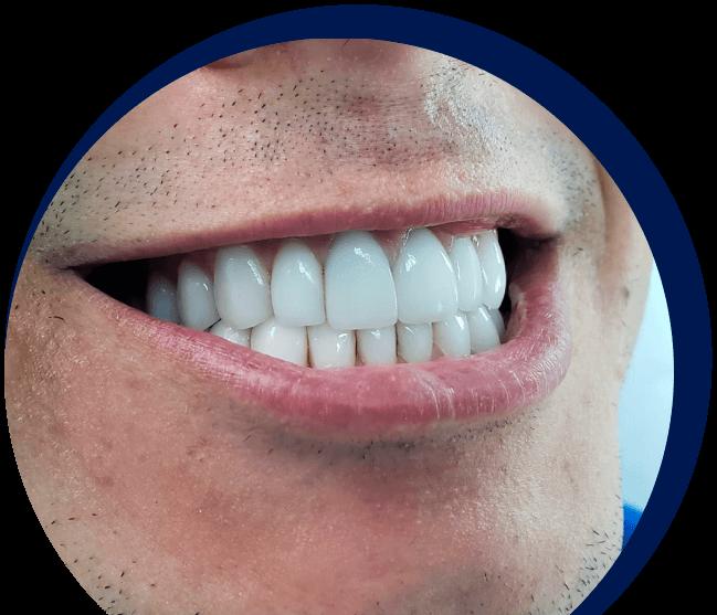 Odontologia estética ao seu alcance