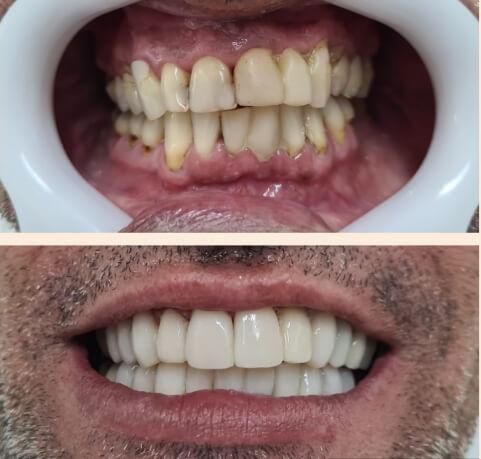 Perda Óssea Dental com técnica inovadora